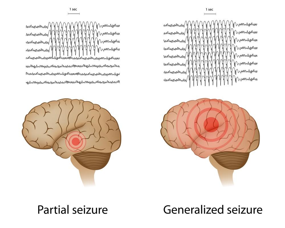 epilepsy3